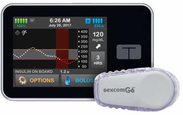 Control-IQ diabetes management system